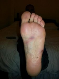 foot infection tubing laos