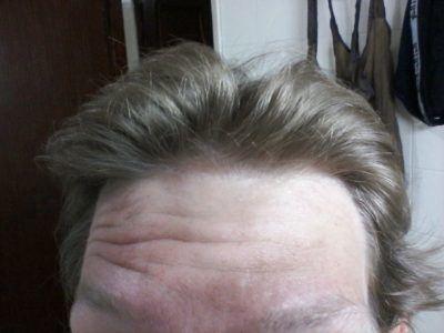 The Day I...Got Loads of Spots on My Head in Senegal